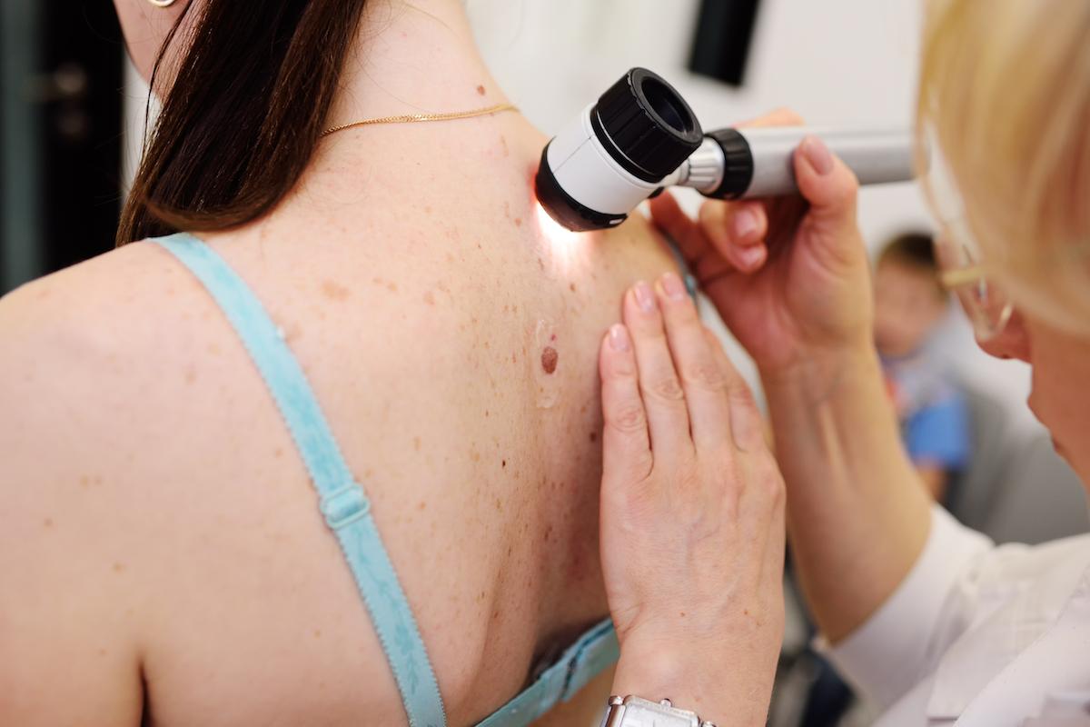 freckles on skin